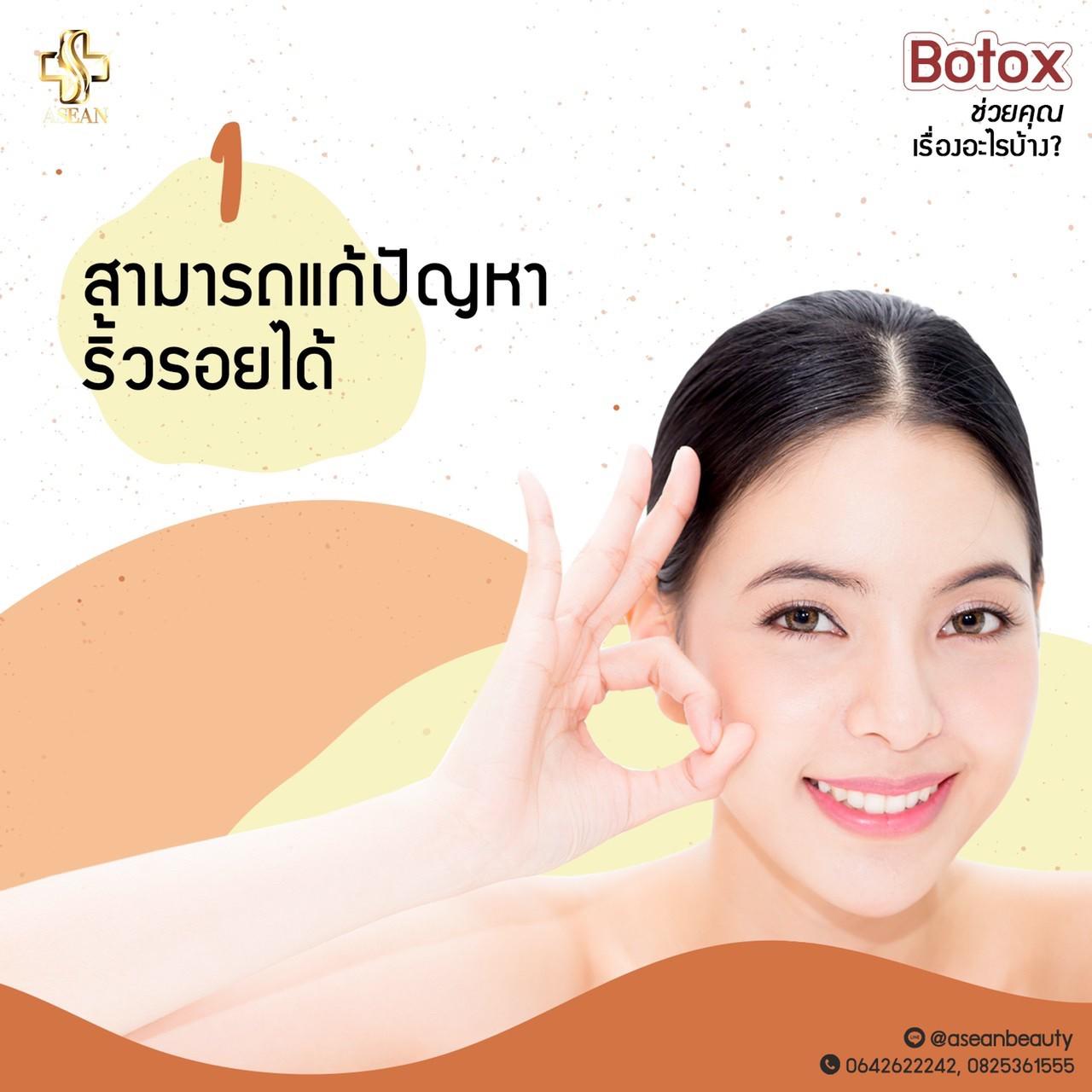 Botoxช่วยเรื่องอะไร02
