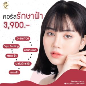 Promotion-รักษาฝ้า-AseanClinic-1