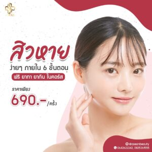 Promotion-รักษาสิว-Aseanclinic-1