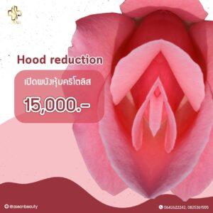 Promotion-HoodReduction