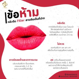 ข้อห้ามหลังฉีดFillerปาก-AseanBeautyClinic-1