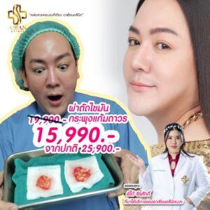 ตัดไขมันกรพพุ้งแก้ม-AseanBeautyClinic