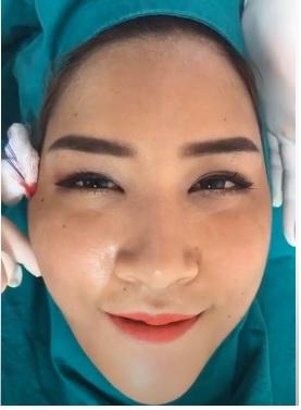 ร้อยไหมคริสตัลReview115-AseanBeautyClinic