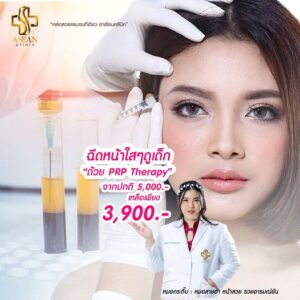 Promotion-PRPTherapy-AseanBeautyClinic